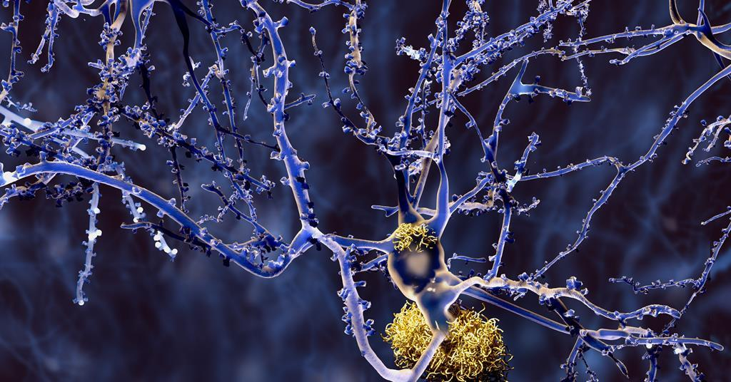 Biochemical mystery unfolds as elemental metals found in Alzheimer's patients' brains