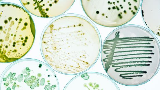 Petri dishes with growing bacteral cultures